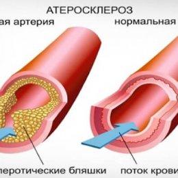 Расторопша при атеросклерозе сосудов — имеет ли смысл использовать