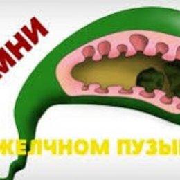 Применение расторопши при желчекаменной болезни