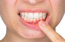 Применение расторопши при гингивите или как вылечить воспаление десен в домашних условиях